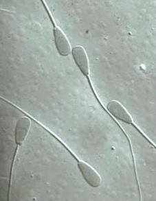 From a photo at http://www.animalimagegallery.org, showing variations in sperm shape and size